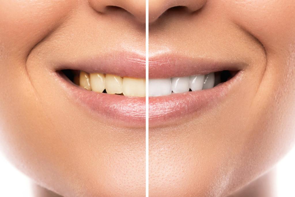 zęby przed i po wybieleniu