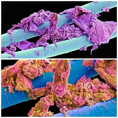 Nić dentystyczna pod mikroskopem