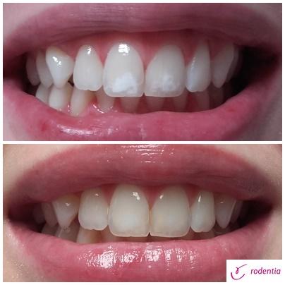Usuwanie białych plamek na zębach – icon