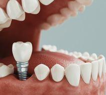 Ubytki w uzębieniu. Implanty dentystyczne  ?
