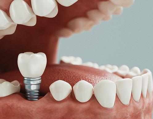 Ubytki w uzębieniu. Implanty dentystyczne  🦷